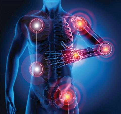 Artritis reumatoidea la importancia de un diagnóstico temprano (1).jpg