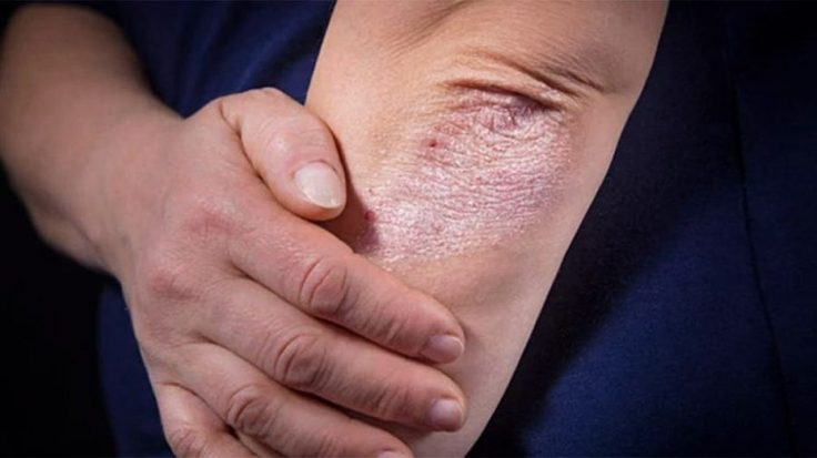 codigo salud online psoriasis sol (4).jpg