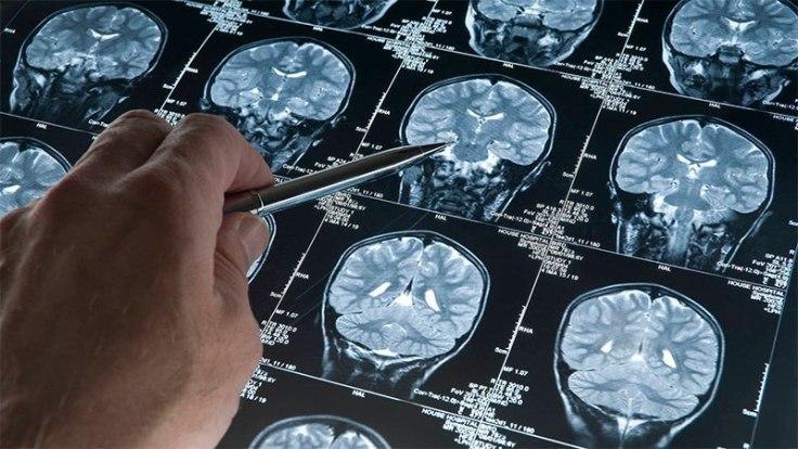 codigo salud online Eye Tracker una nueva técnica para el diagnóstico temprano del Alzheimer (2).jpg
