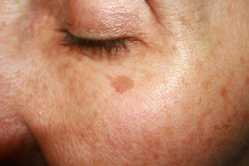 codigo salud online manchas en la piel (5)