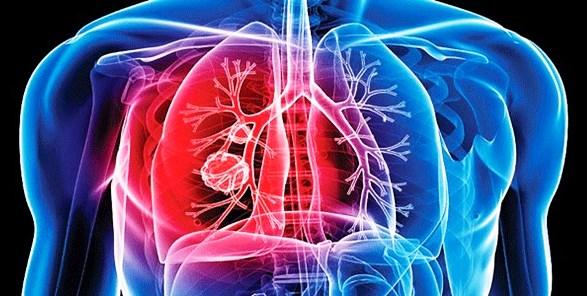 tuberculosis-