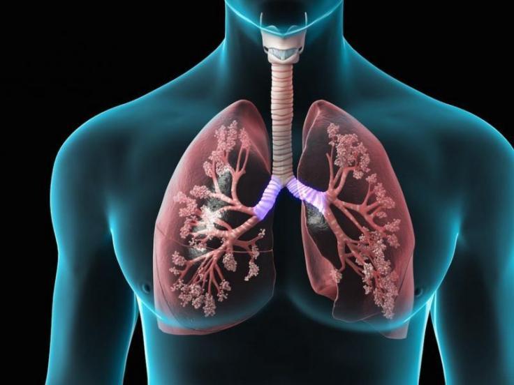 codigo salud online hipertension pulmonar 3