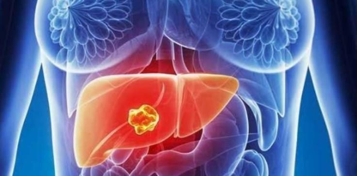 tumores hepaticos.jpg