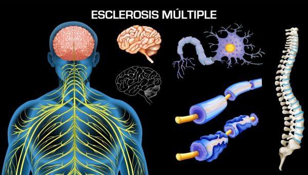 codigo salud online esclerosis multiple (5)
