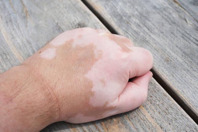 codigo salud online vitiligo 2