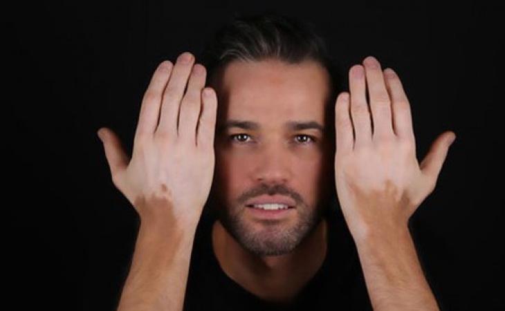 enfermedad de manchas en la piel blancas