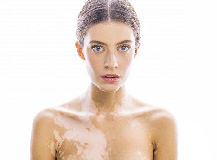 codigo salud online vitiligo
