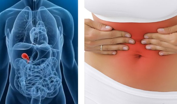 codigo salud online cuando operar calculos en vesicula (4)