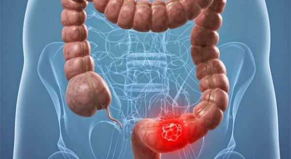 codigo salud online enfermedad de crohn y cancer colorrectal (3).jpg