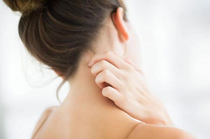 codigo salud online Dermatitis atopica