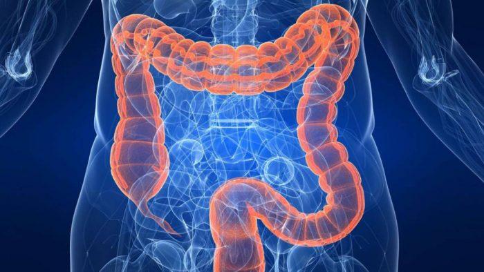 codigo salud online enfermedad intestinal inflamatoria (2)