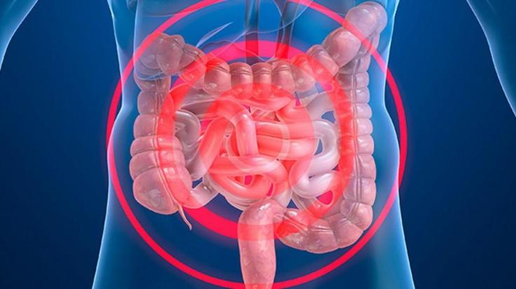 codigo salud online enfermedad intestinal inflamatoria (3)