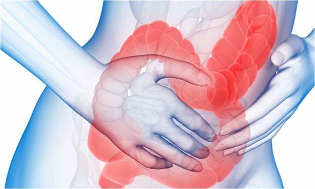 codigo salud online enfermedad intestinal inflamatoria (4)