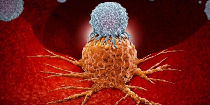 codigo salud online linfoma (2).jpg