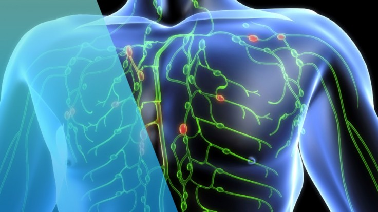 codigo salud online linfoma (3).jpg