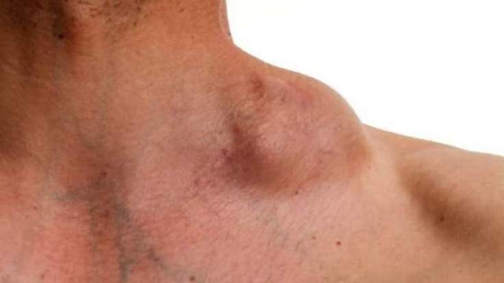 codigo salud online linfoma de hodking (2)