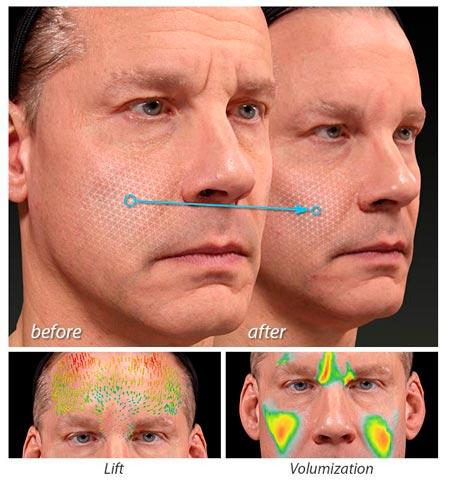 codigo salud online Vectra H2 simulación 3D de resultados para diseñar tratamientos estéticos a medida (2)