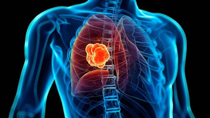 codigo salud online Se amplía el uso de la inmunoterapia para diferentes tipos de cáncer de pulmón (1).jpg