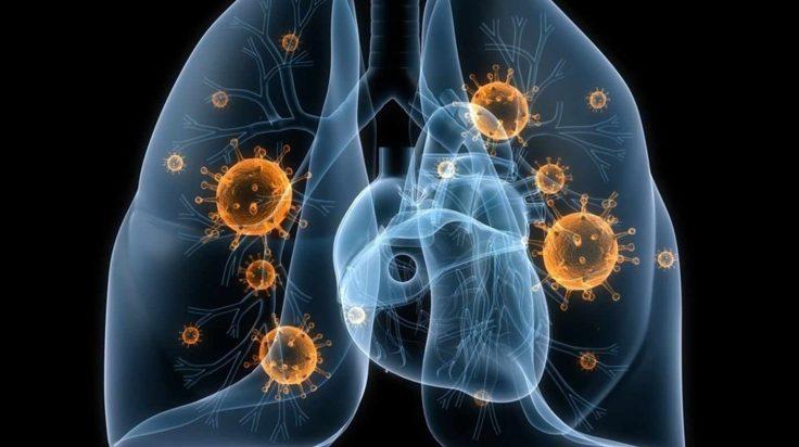 codigo salud online Se amplía el uso de la inmunoterapia para diferentes tipos de cáncer de pulmón (2)