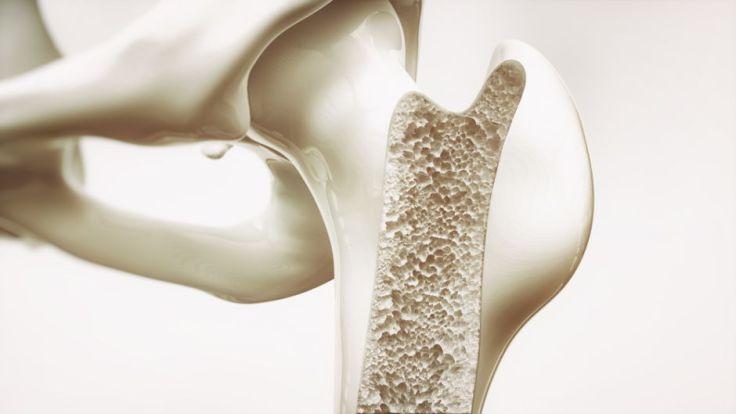 codigo salud online osteoporosis (2)
