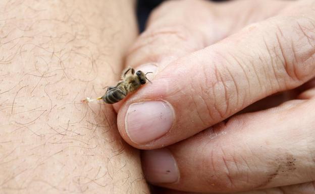 codigo salud online Picaduras de insectos síntomas de reacciones graves (3)
