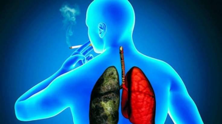 codigo salud online Cáncer de Pulmón, la detección precoz aumenta las posibilidades de sobrevida (2)