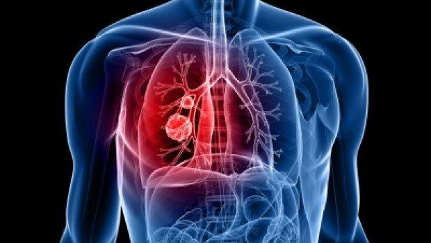 codigo salud online Cáncer de Pulmón, la detección precoz aumenta las posibilidades de sobrevida (3)