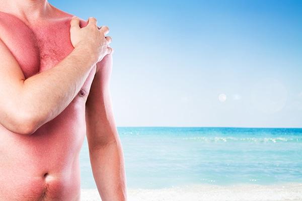 codigo salud online aumentan los casos de cancer de piel en el mundo (2)