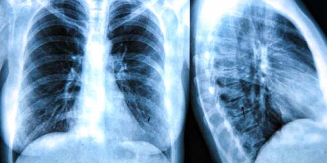 codigo salud online fibrosis quistica en adutos (2)