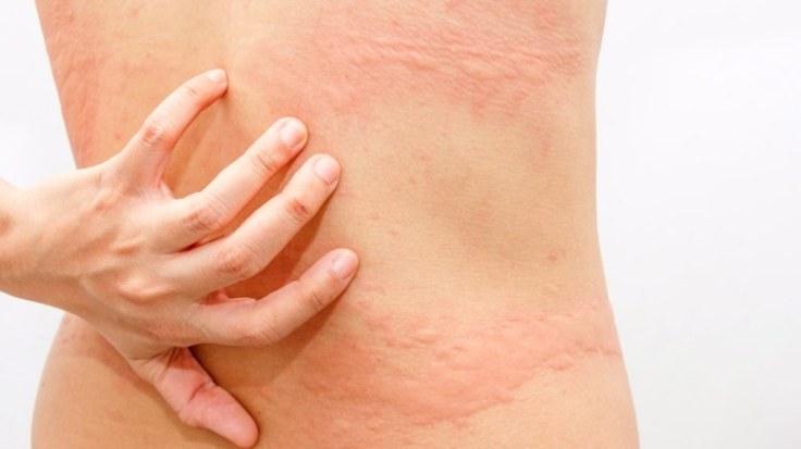 codigo salud online Urticaria una enfermedad de la piel que puede persistir por años (2)