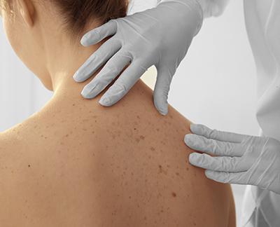 codigo salud online Logran reducir a la mitad el riesgo de muerte o recaída en personas con melanoma avanzado (2)