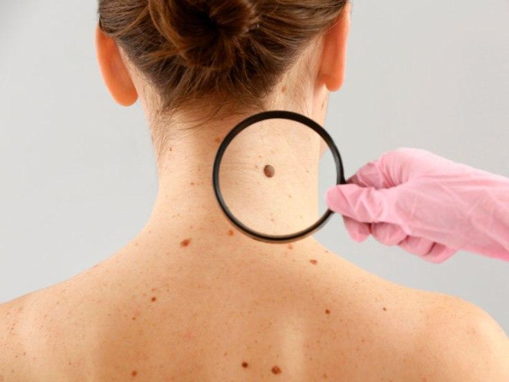 codigo salud online Logran reducir a la mitad el riesgo de muerte o recaída en personas con melanoma avanzado (4)
